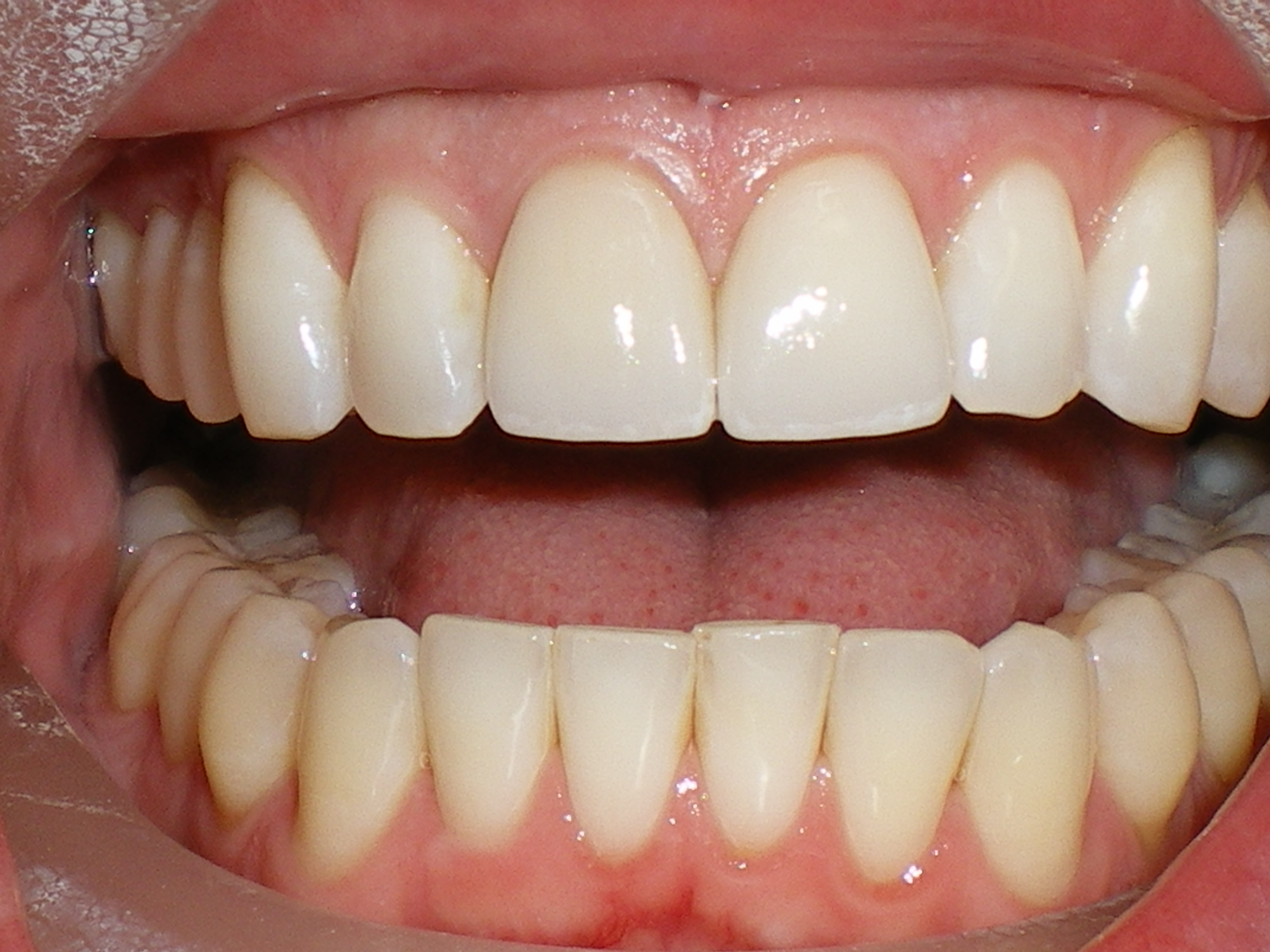 What should healthy gums look like